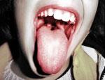yellow singing tongue